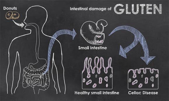 damaged villi lactose intolerance